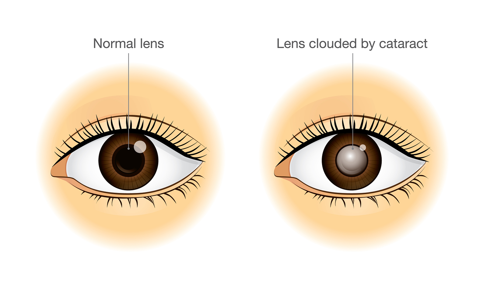 Facts About Cataracts Image