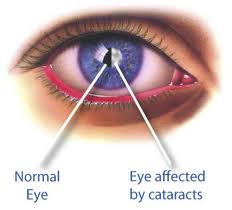 Cataracts – The Leading Cause of Blindness for Those 55 Years and Older