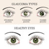 Natural Ways to Bring Down Eye Pressure