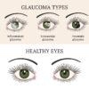 Natural Ways to Bring Down Eye Pressure