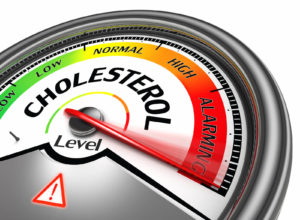 Is There a Connection Between Cholesterol and Cataracts?