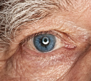 Vision Changes to Watch Out for as You Grow Older
