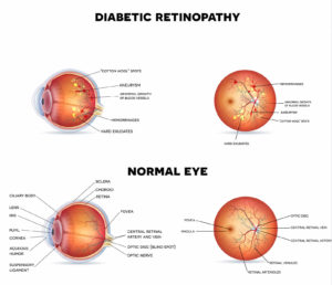 What is Diabetic Retinopathy and What Causes It