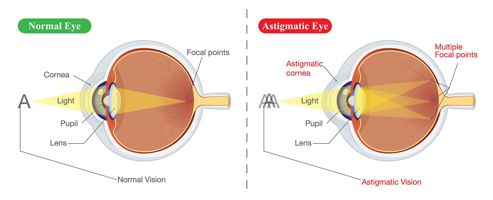 Image result for astigmatism