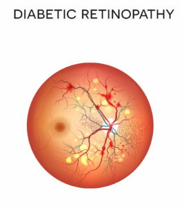 Diabetic Retinopathy Caused by Nerve Damage