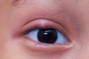 Natural Remedies for Common Eye Problems