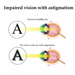 Naturally Improve Poor Vision Caused by Astigmatism