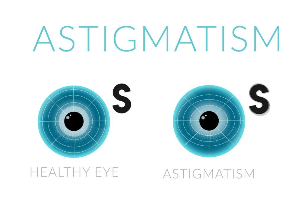 astigmatism viziune minus 6 poate acupunctura vindeca miopia