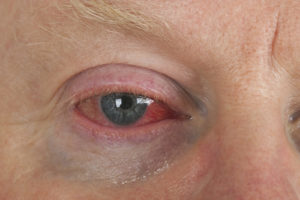 Chronic Fatigue Syndrome and Your Eyes