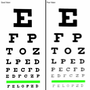 Eye Exercises for People with Different Prescriptions for Each Eye