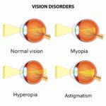 Myopia, Hyperopia and Astigmatism Explained