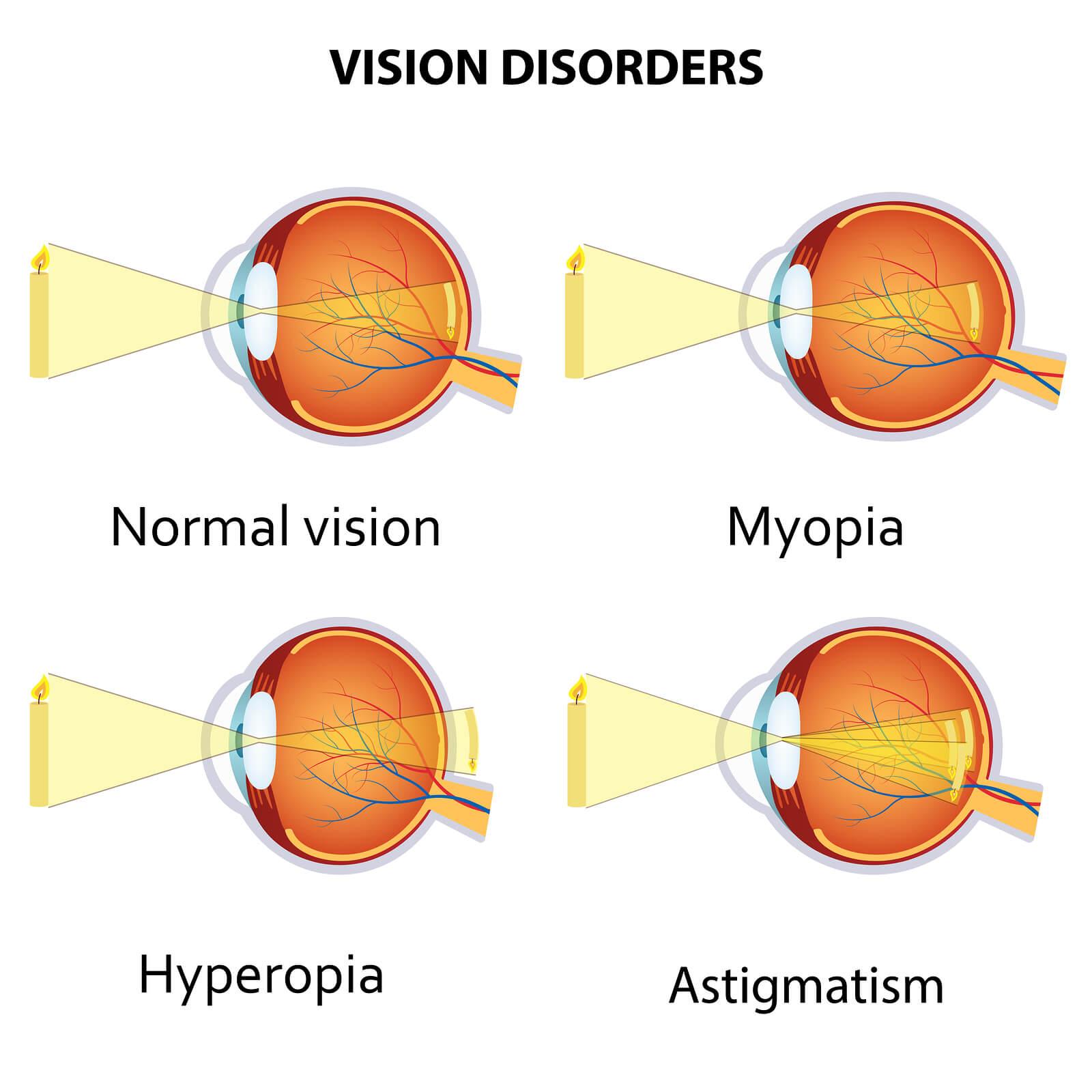 hyperopia és myopia mi a különbség