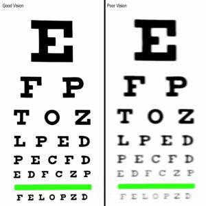 Can LASIK Eye Surgery Cure Myopia?