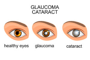 Common Eye Disorder Image