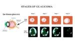 Prevent Glaucoma Image