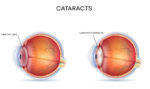 Prevent Cataracts Naturally Image